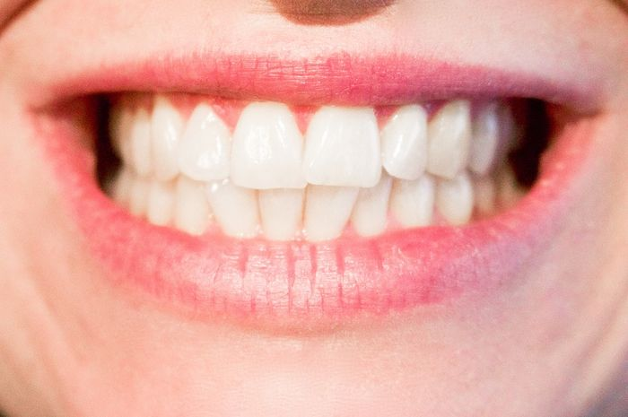 Gigi putih bersih menandakan gigi kita sehat. dffa6435f2