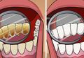 Resep Melenyapkan Karang Gigi Secara Alami Dengan Buah-buahan