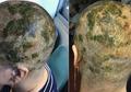 Akibat Warnai Rambut, Wanita ini Harus Rela Membotaki Kepalanya