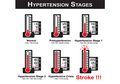 Merasa Sehat? Cek Tekanan Darah Karena Hipertensi Muncul Tanpa Gejala