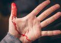 Tidak Melulu Kelainan, Keringat Darah Bisa Dipicu Oleh Depresi!