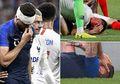 Ngeri! Kepala Giroud Bocor ketika Prancis Bertanding Melawan USA