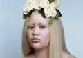 Di-Bully karena Albino, Perempuan Ini Percaya Diri di Dunia Modelling