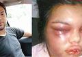 Hanya Karena Like Banyak di Facebook, Perempuan Ini Selalu Dipukuli Suaminya!