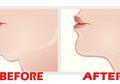 Jangan Galau Lagi! Ada Cara Mudah Hilangkan Double Chin dalam 6 Hari