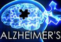 Benarkah Risiko Alzheimer Mengintai Penderita Tekanan Darah Tinggi?
