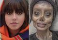 Ingin Seperti Angelina Jolie, Wajah Perempuan Ini Berubah Mengerikan