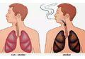 Paru-paru Kotor Bisa Memicu Kanker, Perhatikan Gejala dan Tandanya!
