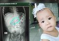 Anak Tidak Rewel Sama Sekali, Ibu Ini Kaget Temukan Anting Di Dalam Tubuhnya