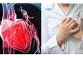 Berita Kesehatan: 6 Gejala Serangan Jantung Palsu, Perlu Tahu Agar Tak Panik!