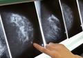 Kejadian Langka! 4 Orang Alami Kanker Setelah Dapatkan Donasi Organ