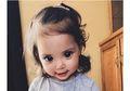 Meski Mata Anak Ini Terlihat Indah, Ternyata Ia Mengalami Sindrom Langka