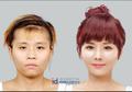 5 Foto Perubahan Drastis Sebelum dan Sesudah Operasi Plastik