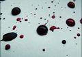 Darah Menstruasi Berwarna Hitam? Ternyata Ini Lho Penyebabnya!