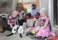 Diskriminasi Tinggi, Albino di Afrika Selatan Hidup dalam Ketakutan
