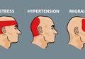 Cara Mudah Mengusir Sakit Kepala Dalam 5 Menit Tanpa Perlu Obat