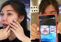 Operasi Plastik Gagal, Wanita Ini Dibiarkan 'Cacat' Setelah Membayar Rp 55 Juta!