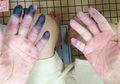 Jari Tangan dan Kaki Kakek 84 Tahun Ini Menghitam, Ternyata Ini Penyebabnya