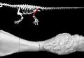 Kanker Sudah Ada Sejak 240 Juta Tahun Lalu, Ditemukan Pada Fosil Purba