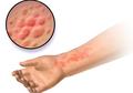Mengenal Penyakit Lupus, 'Penyakit Seribu Wajah' yang Berbahaya