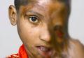 Gadis dengan Wajah Meleleh karena Tersiram Air Keras Akhirnya Mendapat Harapan, Ibunya pun Senang Bukan Kepalang