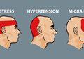 Ini Cara Mengusir Sakit Kepala dalam 5 Menit Tanpa Pil Atau Obat Kimia