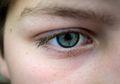 Cegah Mata Anda dari Kebutaan dengan 10 Tips Ini