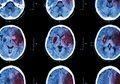 11 Penyebab Utama Stroke Pada Remaja