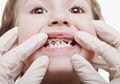 Minum Susu Sambil Tiduran Membuat Gigi Anak Menghitam, Ini Solusinya