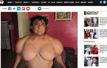 Bukan Karena Olahraga, Ini Penyebab Tangan Penyelam Peru Jadi Kekar Seperti Popeye