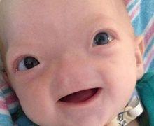 Lahir Tanpa Hidung, Bayi Menggemaskan Ini Tetap Tersenyum Manis