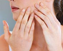 Gunakan 3 Cara Ini Untuk Menutupi Jerawat Tanpa Perlu Makeup!