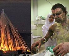 Inilah Kengerian Bom Fosfor yang Diduga Digunakan Amerika Menyerang Suriah dan Dilarang Konvensi Jenewa