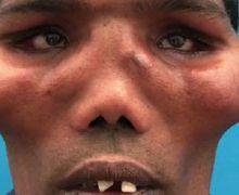 Miliki 'Wajah Singa', Pria Ini Bikin Orang Pangling Setelah Operasi Wajah