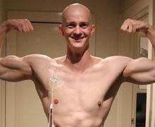 Beruntung atau Ajaib? Dua Kali Didiagnosa Kanker, Binaragawan Ini Berhasil Sembuh Total