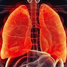 6 Penyebab Kanker Paru-paru yang Tidak Berkaitan Dengan Rokok, Catat!