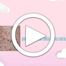 [VIDEO] Tanda Leukemia yang Paling Sering Diabaikan #MomsHarusTahu