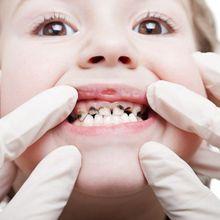 Berita Kesehatan: Cara Mengatasi dan Mencegah Gigi Berlubang Pada Anak