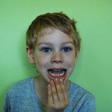 4 Hal yang Menyebabkan Gigi Jadi Kuning, Pernah Melakukannya?