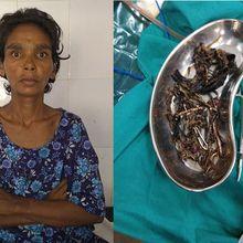 Bukan Makanan, Saat Dibedah Dokter Terheran-Heran dengan Isi Perut Wanita Ini!