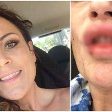 Niatnya Ingin Jadi Lebih Cantik, Bibir Perempuan Ini Justru Bernanah dan Terluka Akibat Filler Murah!