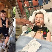 Anak Ini Koma Setelah Sakit Kepala Hingga Muntah, Ternyata Ini Penyakit yang Diderita