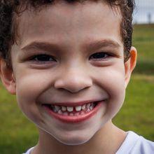 Sebenarnya Apa Penyebab Gigi Kita Bisa Berlubang, ya? #AkuBacaAkuTahu