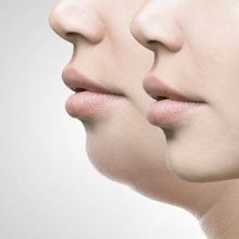 Double Chin Bikin Enggak Pede? Atasi dengan 5 Bahan Alami yang Mudah Didapat Ini!
