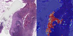 Google Lebih Jago Mendeteksi Kanker Payudara Dibandingkan Manusia