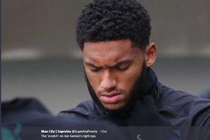 Berkelahi dengan Sterling, Bek Liverpool Latihan dengan Luka di Wajah