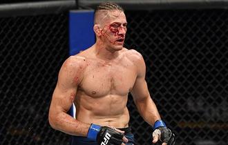 Muka Hancur Kembali Tampan, Petarung UFC Ngaku Berkat Alat Kecantikan