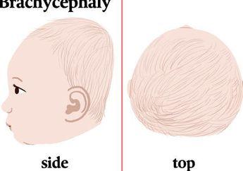 Mengenal Plagiocephaly, Kondisi Kepala Peyang yang Terjadi pada Bayi
