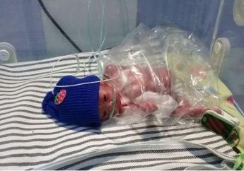 Daffa, Bayi Prematur yang Viral itu Perjuangannya Telah Berakhir