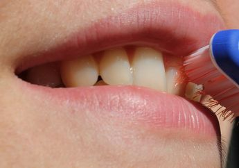 Sakit Gigi Saat Hamil? Begini Cara Alami untuk Mengatasinya